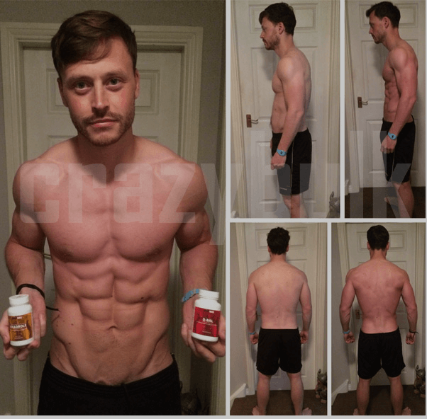 Anadrole Before and After